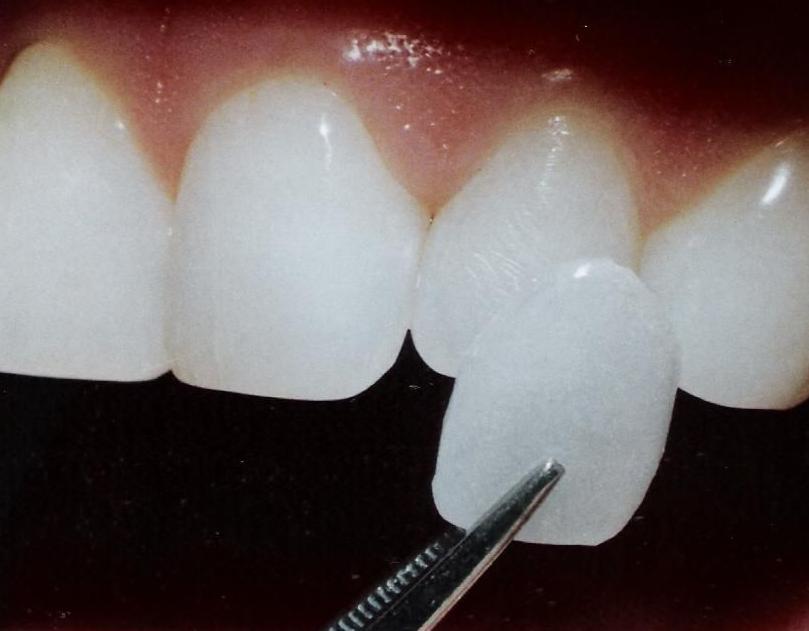 Carillas estéticas: Odontología y Terapias de Centre Odontològic Sant Quirze