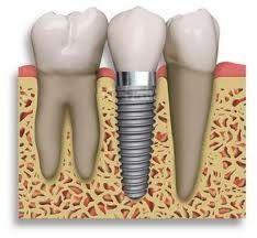 Implantología: Odontología y Terapias de Centre Odontològic Sant Quirze