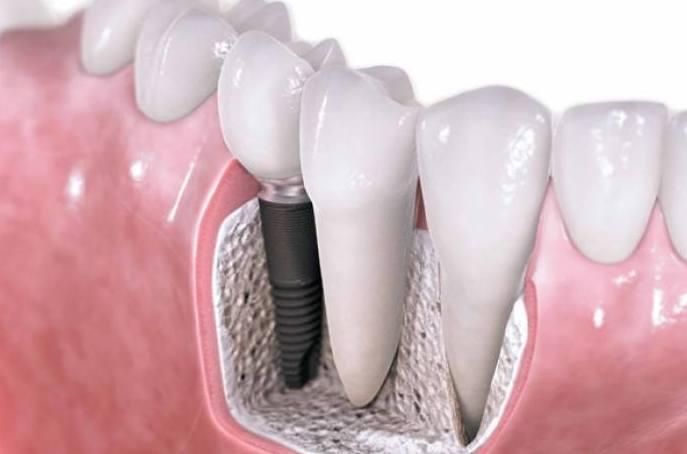 Clínica dental. Implantes en BIlbao