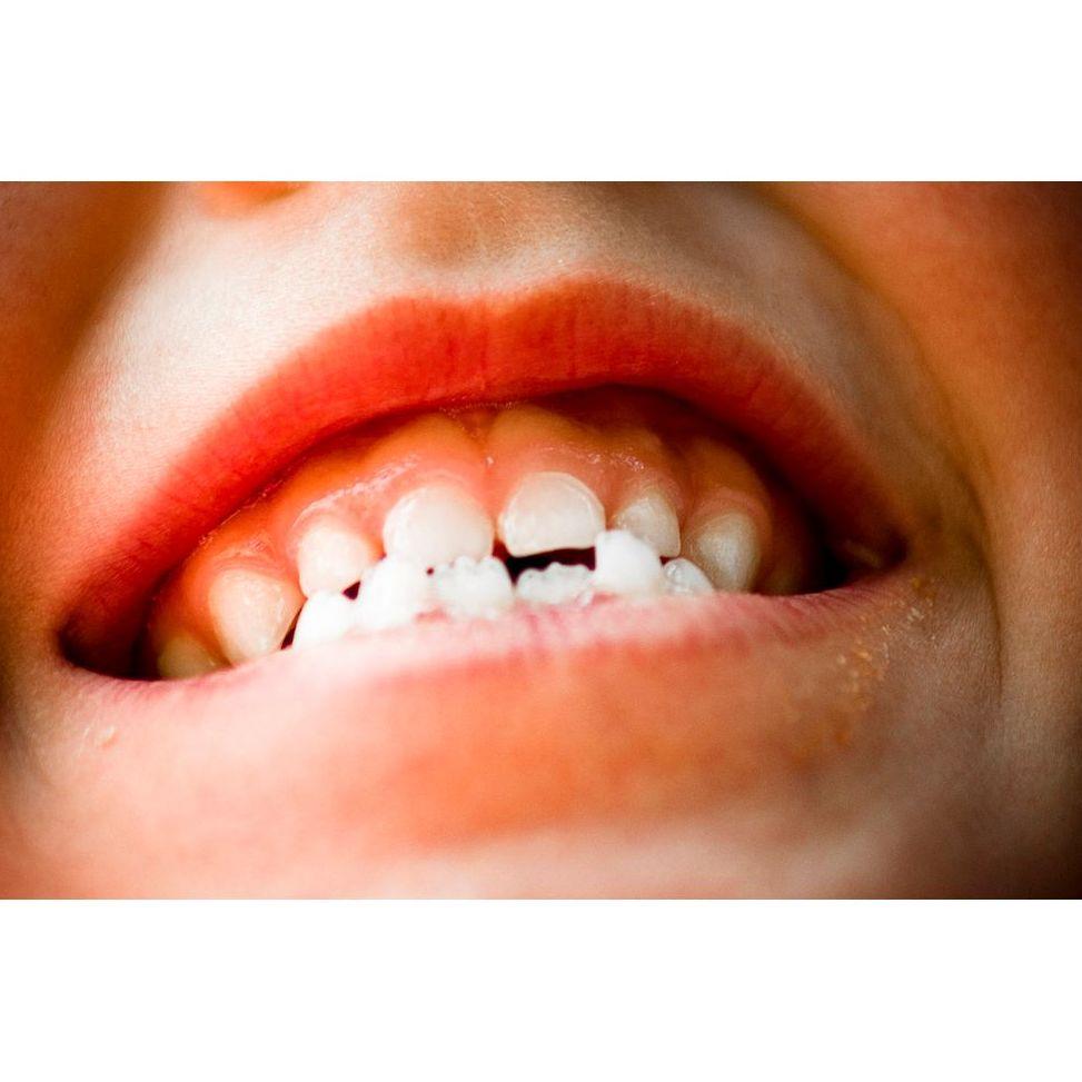 ortodoncia infantil bilbao