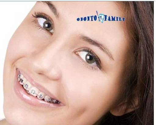 Clinica de ortodoncia Bilbao