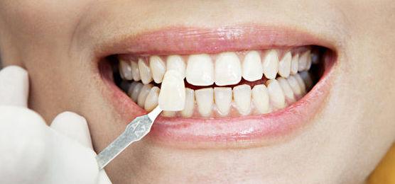 Tratamientos de estética y salud dental en Badajoz