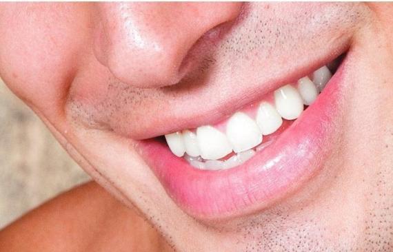 Foto 13 de Dentistas en Albacete | Clínica Dental Elena Jiménez Jiménez