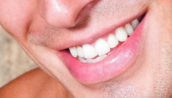 Periodoncia: Catálogo de Clínica Dental Elena Jiménez Jiménez
