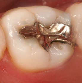 Odontología Conservadora: Catálogo de Clínica Dental Elena Jiménez Jiménez
