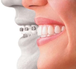 Ortodoncia: Catálogo de Clínica Dental Elena Jiménez Jiménez