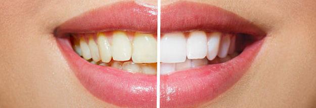 Blanqueamiento dental: Tratamientos de Clínica Dental Nora Accaputo de Vizcaya