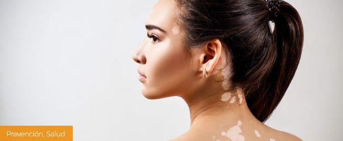El porqué de las manchas blancas en la piel
