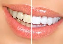 Estetica dental: Servicios  de Clínica Dental Errota