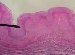 Urología de la mujer: Especialidad de Unidad de Urología Dr. Crespi