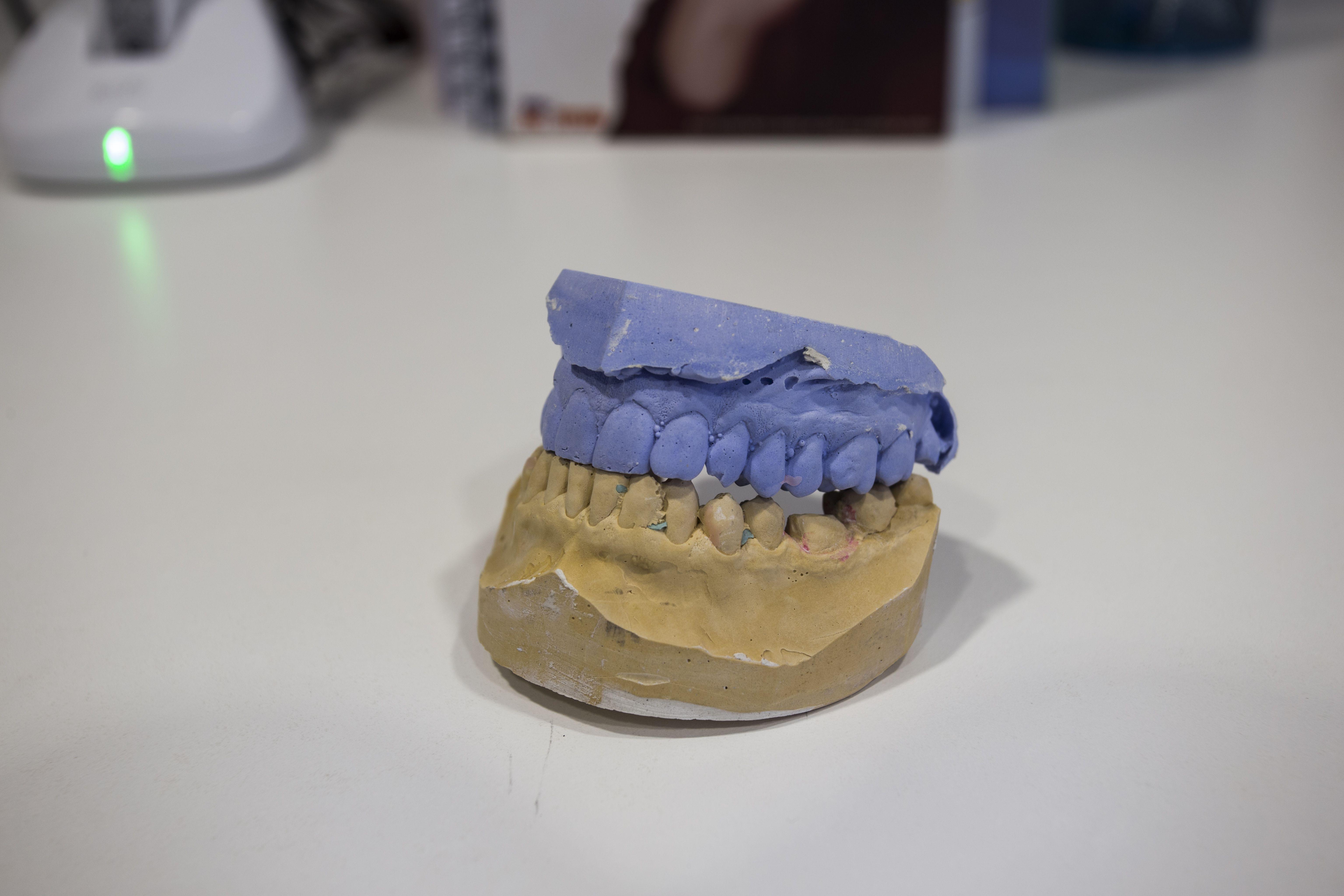 Clínica especializada en implantes dentales en León