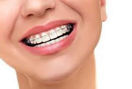 Ortodoncia: Tratamientos  de Clínica Dental Eladio Angulo