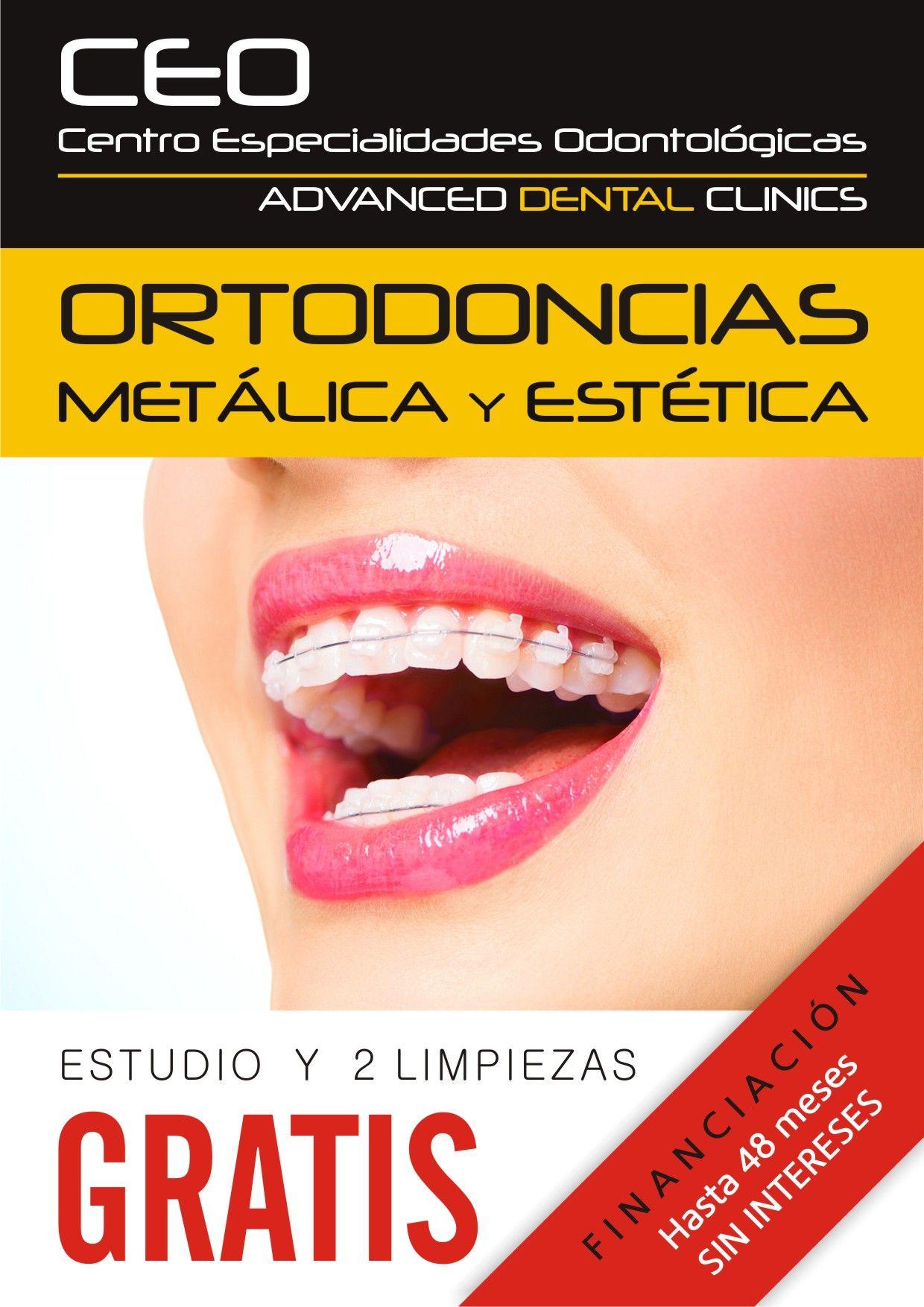 Brackets de zafiro: Tratamientos dentales de Centro Especialidades Odontologicas