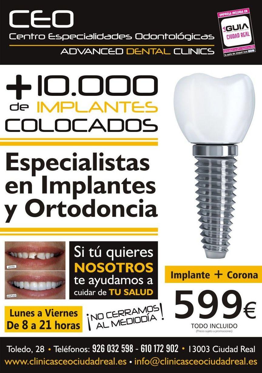 Promoción en ortodoncia: Tratamientos dentales de Centro Especialidades Odontologicas