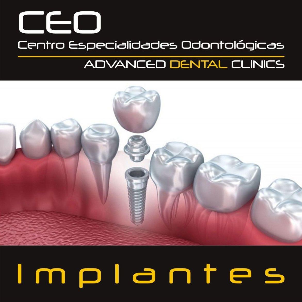Implantes dentales: Tratamientos dentales de Centro Especialidades Odontologicas