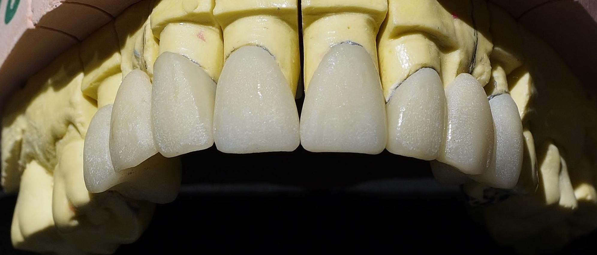 Foto 6 de Protésicos dentales en Segovia | Calidad Tecnident 98, S.L.