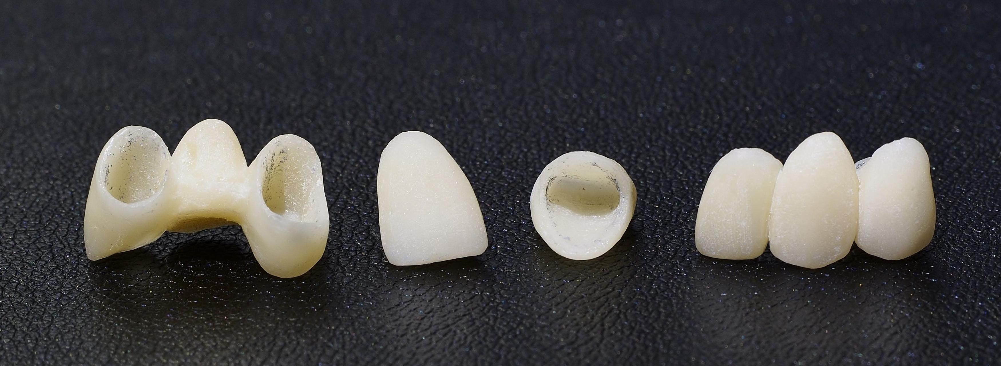 fundas dentales