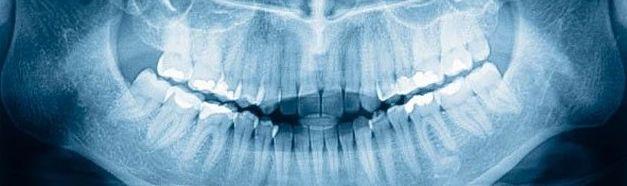 Radiología panorámica