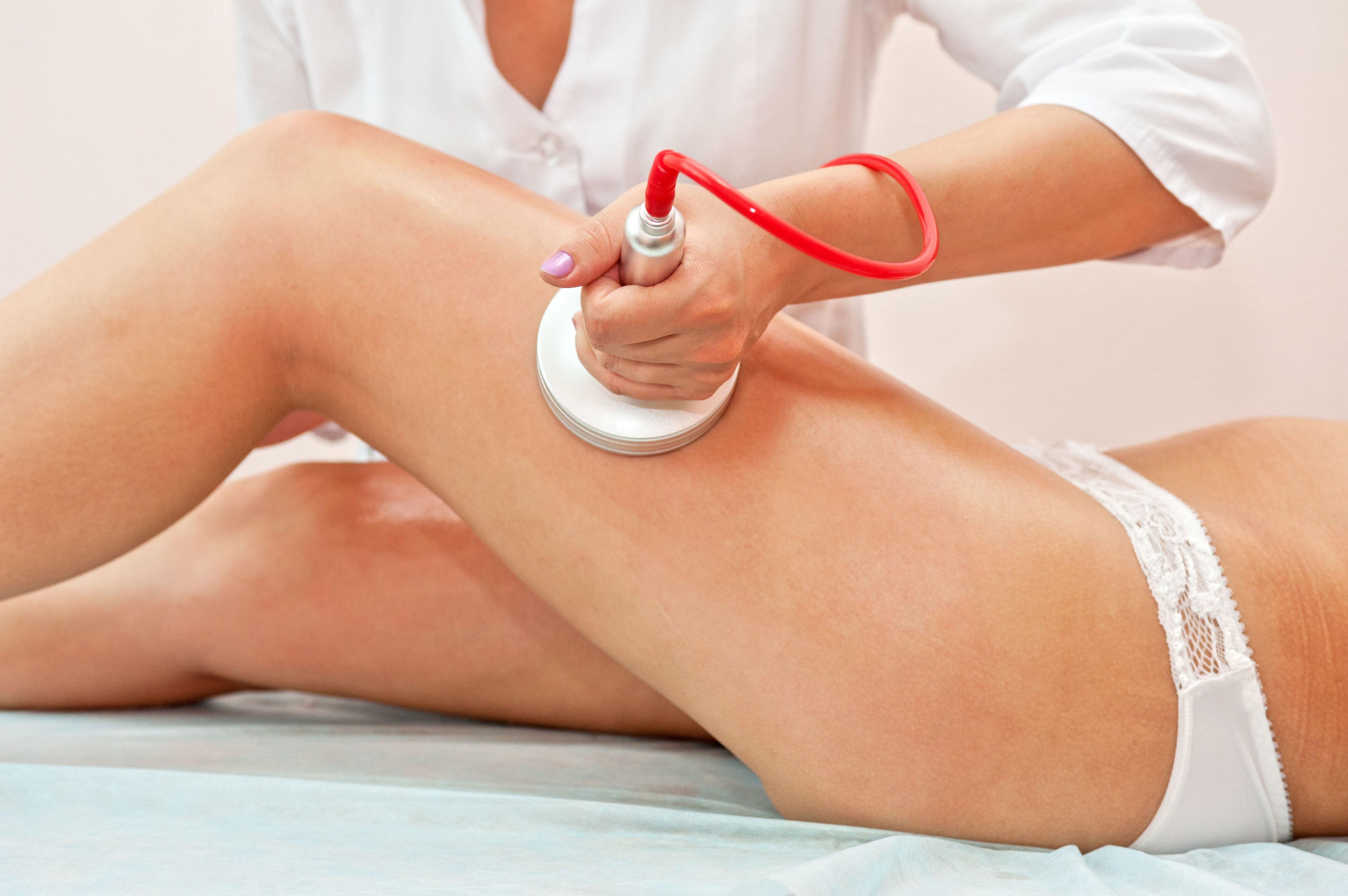 Tratamientos corporales con cavitación: Servicios de Peluquería Juvestile