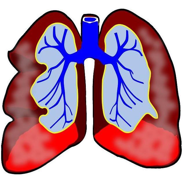 Respiratoria : Tratamientos y Servicios de Centro Aupa