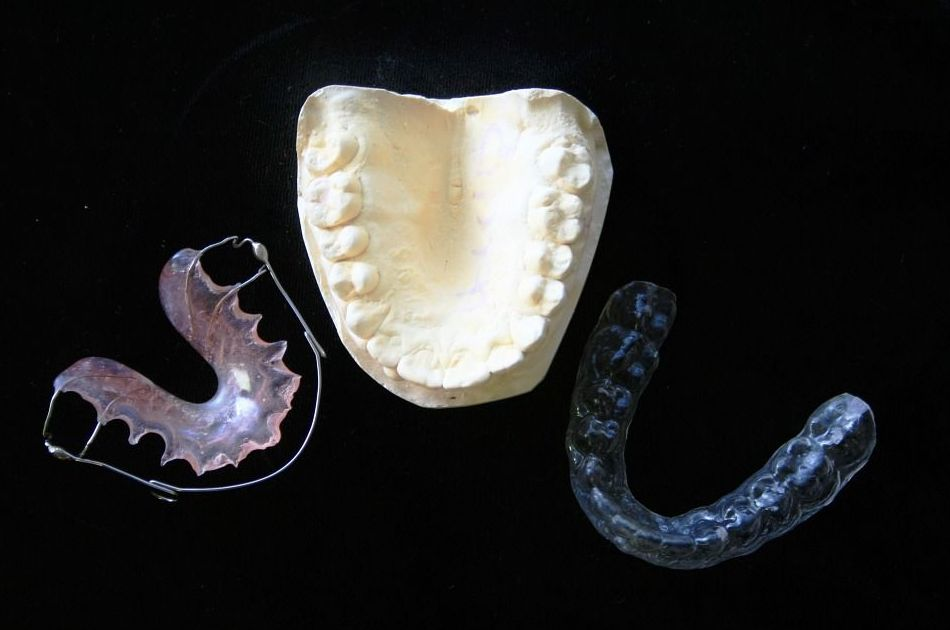 Ortodoncia para adultos en Zaragoza