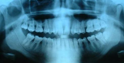 Ortopantomografía o radiografía panorámica