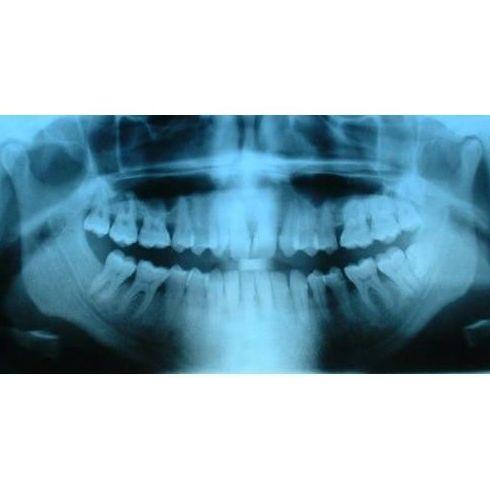 Ortopantomografía: Tratamientos dentales de Clínica Dental Llanos