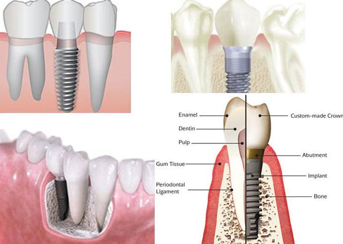 Implante dental Sabadell
