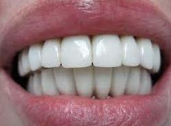 Fundas Metal Ceramica: Tratamientos dentales de Clínica Dental Llanos