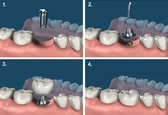 Foto 15 de Clínicas dentales en Tàrrega | Clínica Dental Tárrega - Guissona