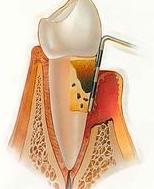 Periodoncia: Tratamientos de Clínica Dental Tárrega - Guissona