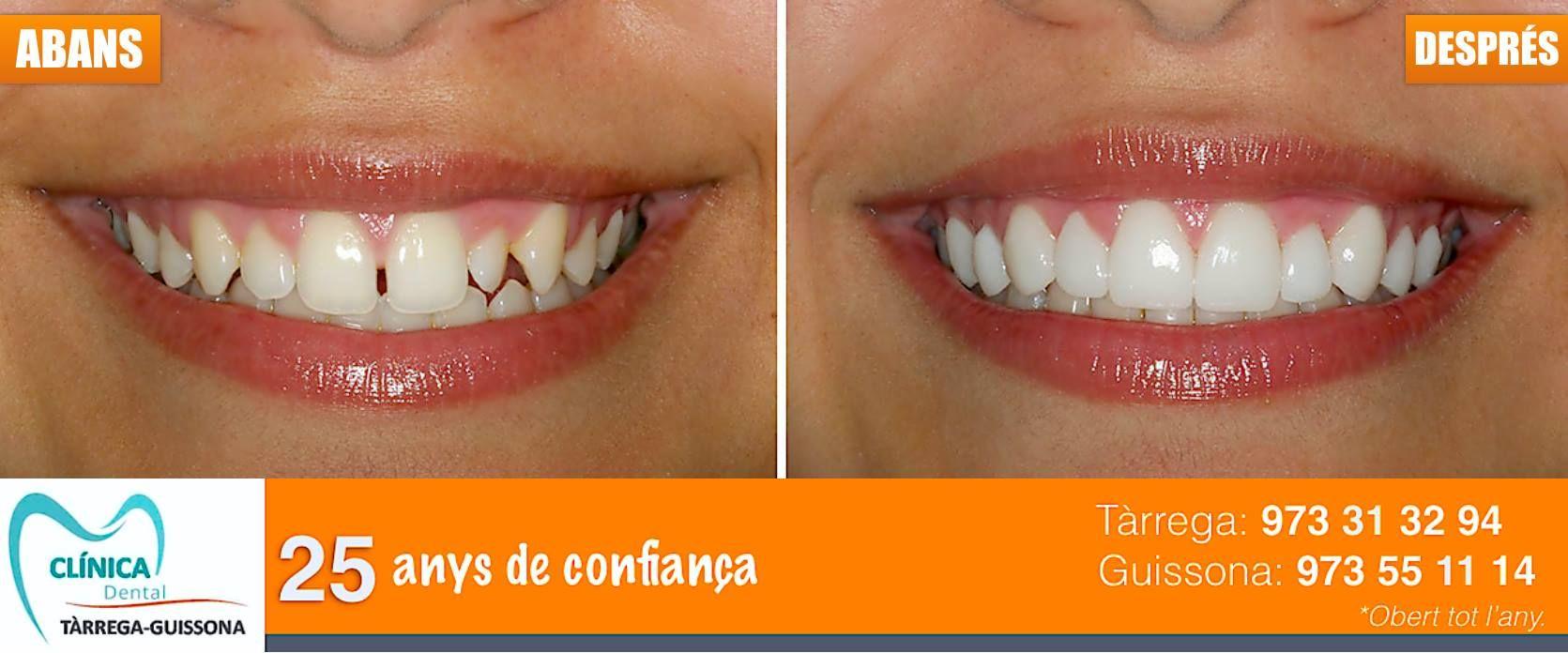Foto 13 de Clínicas dentales en Tàrrega | Clínica Dental Tárrega - Guissona