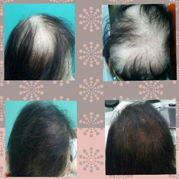 Especialistas en tratamientos contra la calvicie y la alopecia, barcelona,valencia,madrid,zaragoza
