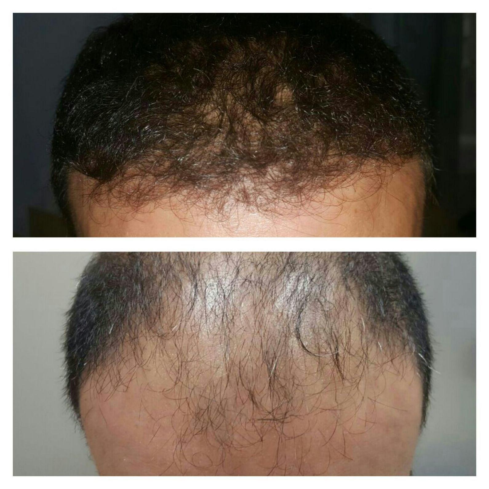 Especialistas en tratamientos contra la calvicie y la alopecia