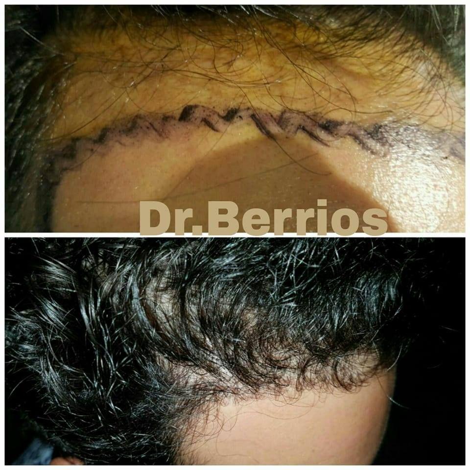 Trasplante de cabello: Servicios de 0 Calvicie