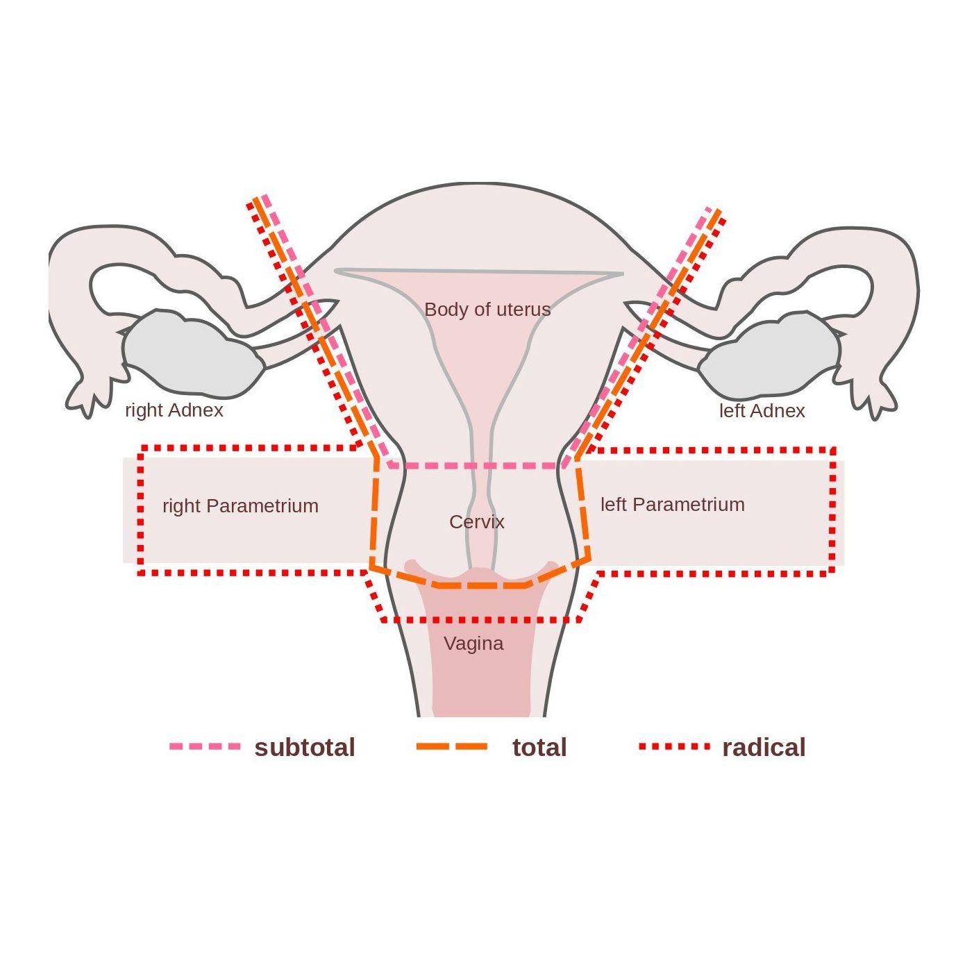 Histerectomía total con anexectomía: Nuestros Tratamientos de Clínica Ginecológica Dr. Silva