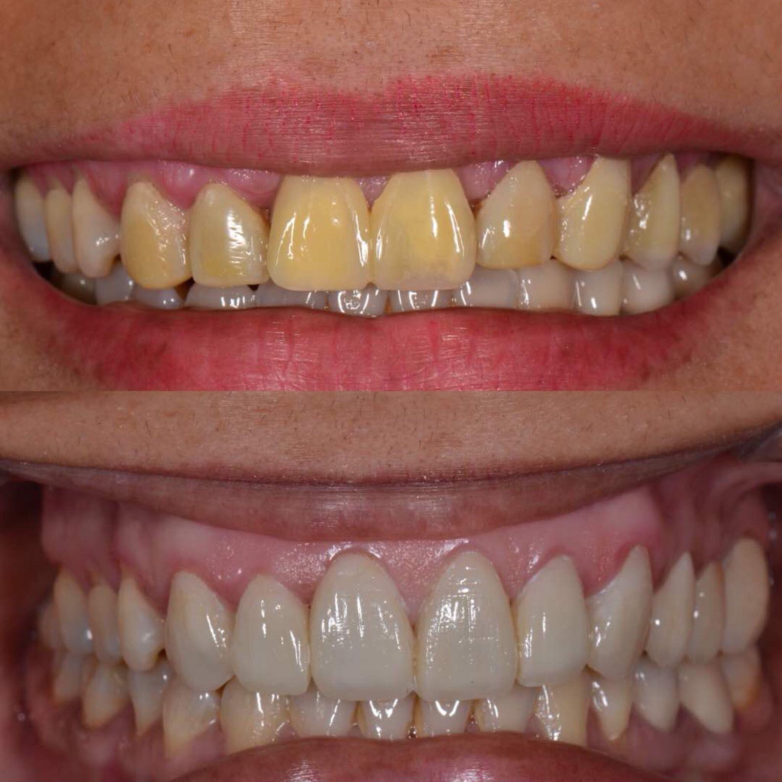 Estética dental en San Sebastián de los Reyes