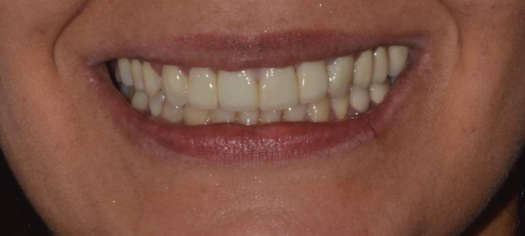 Estética dental: Tratamientos de Bucalplus