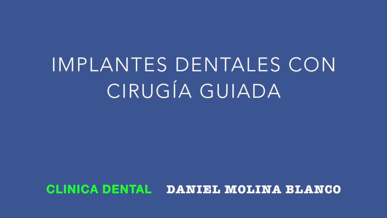 Implantes dentales: Tratamientos y tecnología de Clínica Dental Daniel Molina }}