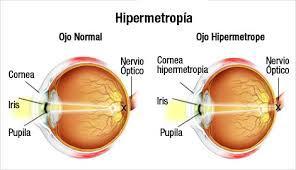 Hipermetropía: Catálogo de Centro Óptico Romero