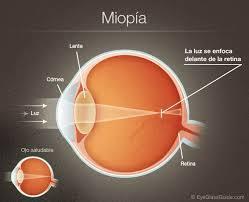 Miopía: Catálogo de Centro Óptico Romero