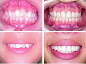 Foto 9 de Clínicas dentales en Zafra | Samuel Cumplido Santiago, Dr.