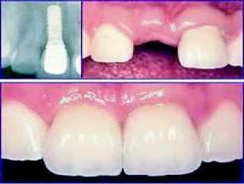 Foto 8 de Clínicas dentales en Zafra | Samuel Cumplido Santiago, Dr.