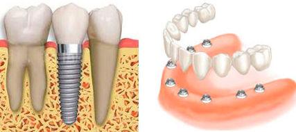 Implantología: Tratamientos de Clínica Dental Sant Roc