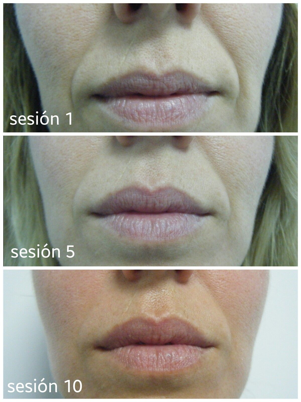 Tratamientos faciales: Tratamientos de Estetimagen