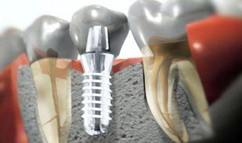 Implantología: Servicios de El Queixal del Seny
