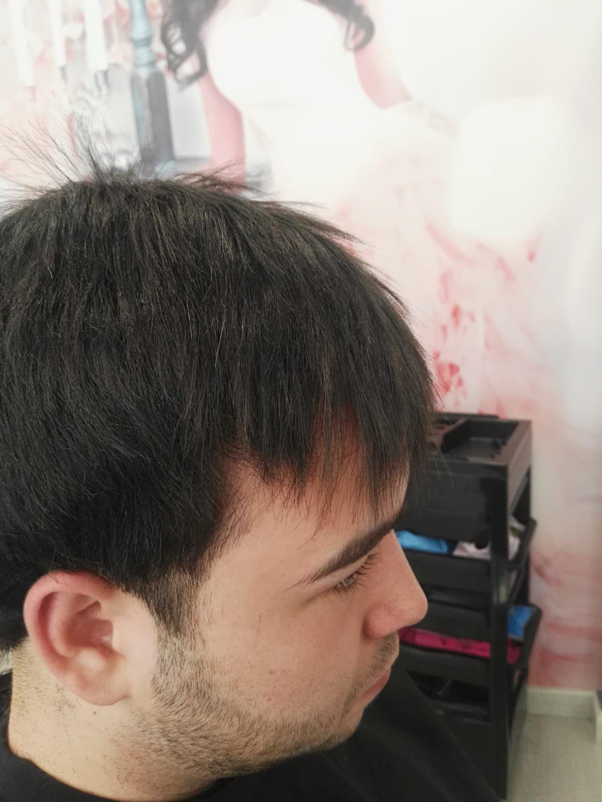 Después del tratamiento