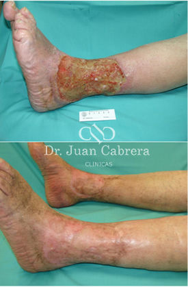 Tratamiento de úlceras