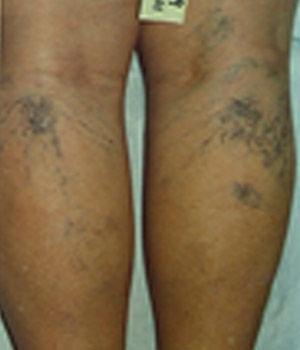 Venas de la piel. Varículas y telangiectasias