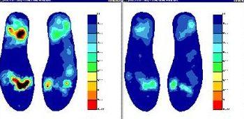 Oferta integral en el estudio y tratamiento del pie